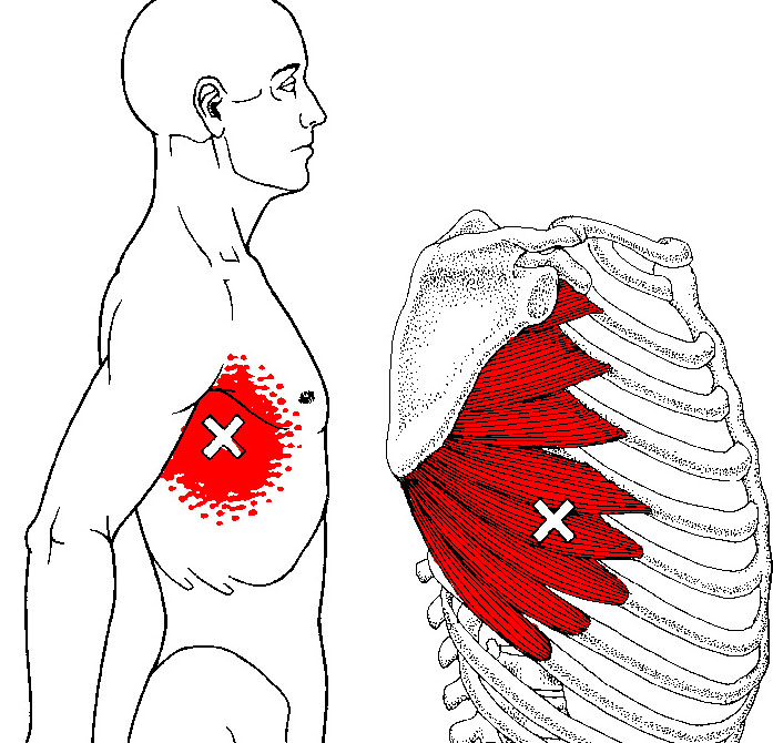 Scap Push-Up Progressions for Shoulder Health and Function